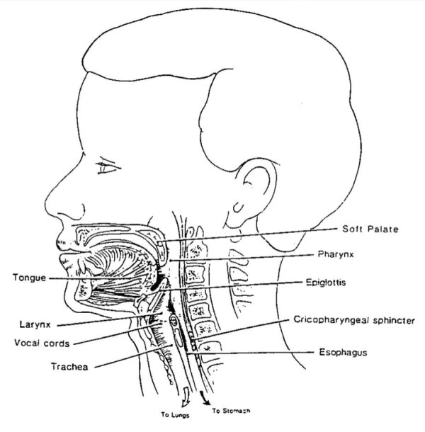 Dysphagia Diagram Related Keywords Dysphagia Diagram